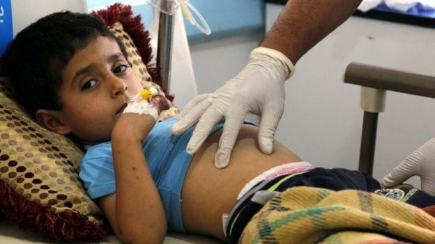 Yemen faces world's worst cholera outbreak - UN